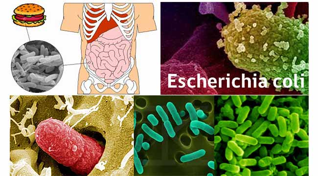 Habitat of E. coli