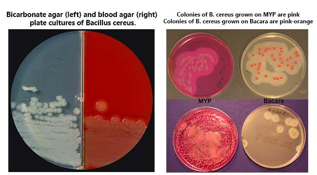 Cultural Characteristics of Bacillus cereus