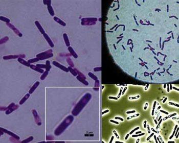 Morphology of Bacillus cereus