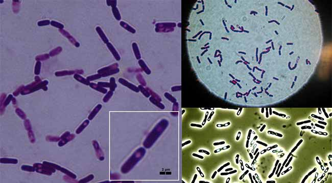 Morphology of Bacillus cereus