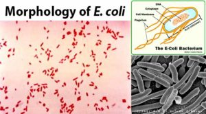 Morphology of E. coli