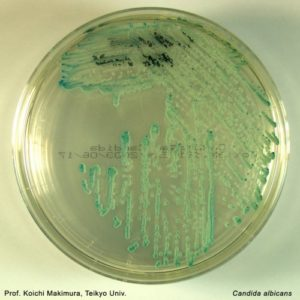 Candida albicans on Chromagar