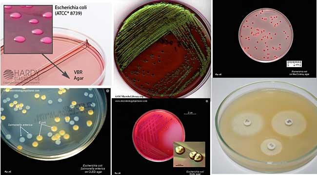 Cultural Characteristics of E. coli