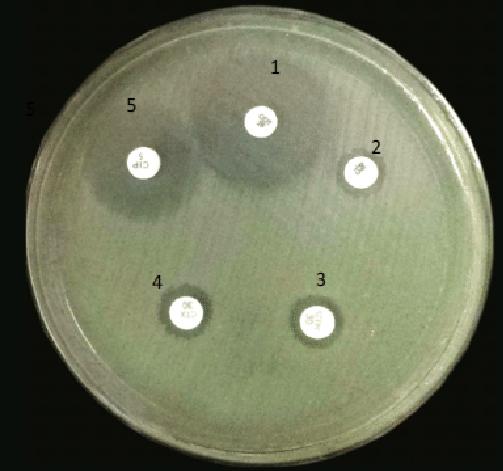 E. coli on Mueller Hinton Agar