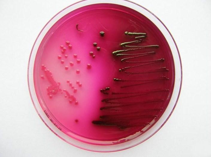 E. coli on m-ENDO Agar