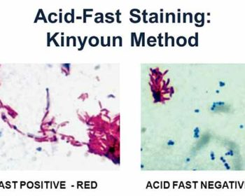 Acid Fast (Kinyoun-Cold Method)- Principle, Procedure and Result Interpretation