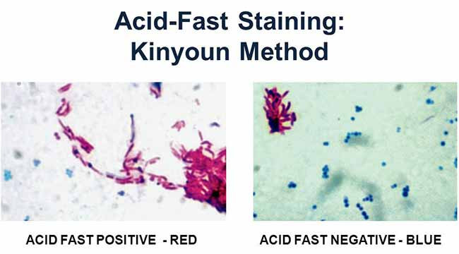 Acid Fast (Kinyoun-Cold Method)- Principle, Procedure and Result Interpretation