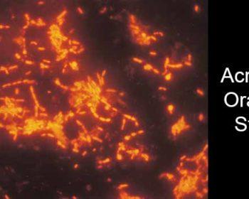 Acridine Orange Stain- Principle, Procedure and Result Interpretation