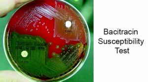 Bacitracin Susceptibility Test- Principle, Procedure and Result Interpretation