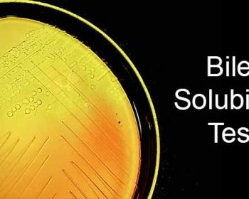 Bile Solubility Test- Principle, Procedure and Result Interpretation