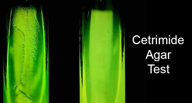 Cetrimide Agar Test- Principle, Procedure and Result Interpretation