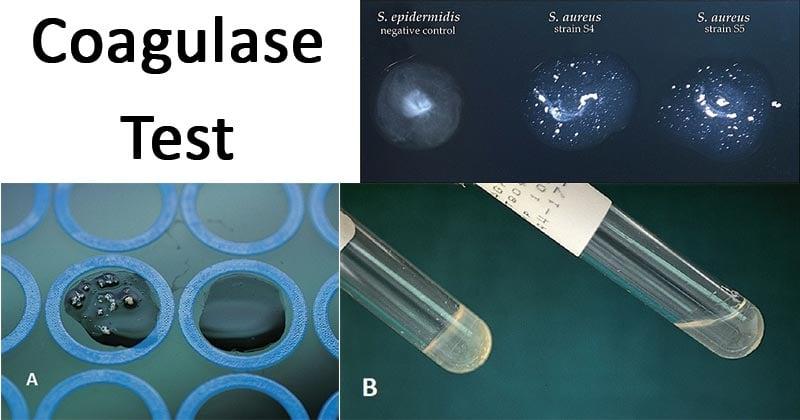 Coagulase Test Results