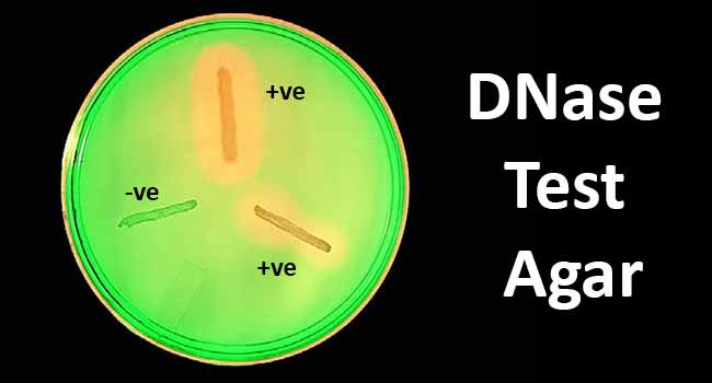 DNase Test Agar- Principle, Procedure and Result Interpretation