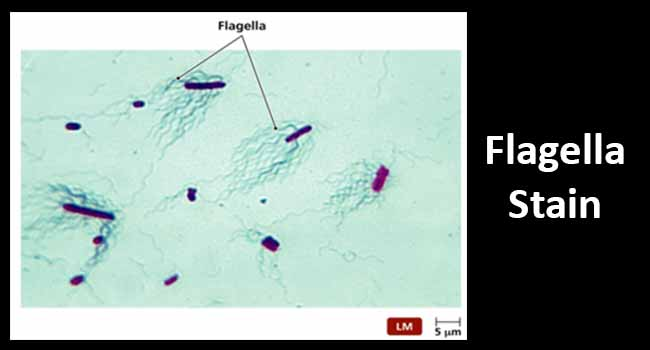 Flagella Stain- Principle, Procedure and Result Interpretation