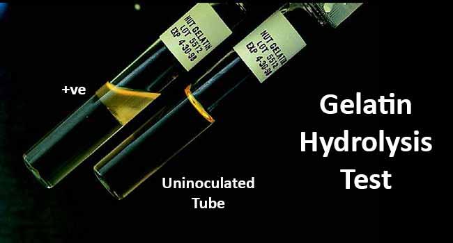 Gelatin Hydrolysis Test- Principle, Procedure and Result Interpretation