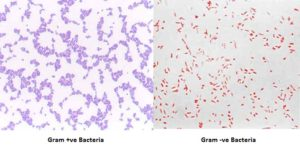 Gram Stain- Principle, Reagents, Procedure and Result Interpretation