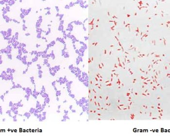 Gram Stain- Principle, Reagents, Procedure and Result Interpretation