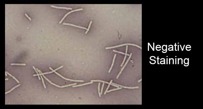 Negative Staining- Principle, Procedure and Result Interpretation