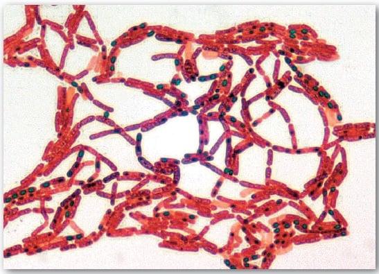 Spore stain of Bacillus