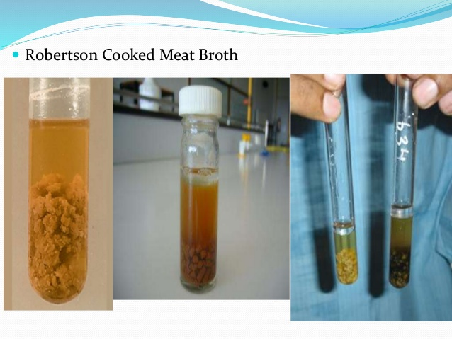 Clostridium perfringens on Robertson's Cooked Meat Broth