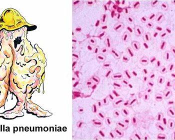 Habitat and Morphology of Klebsiella pneumoniae
