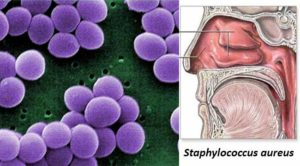 Habitat and Morphology of Staphylococcus aureus