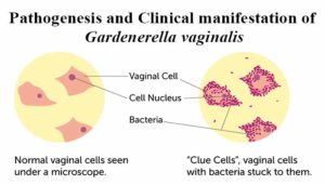 Pathogenesis and Clinical manifestation of Gardenerella vaginalis