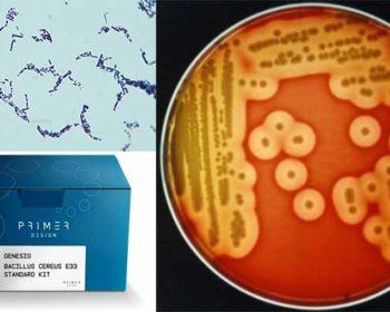 Laboratory Diagnosis, Treatment and Prevention of Bacillus cereus