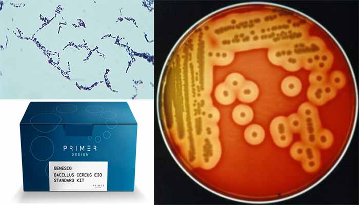 Laboratory Diagnosis of Bacillus cereus