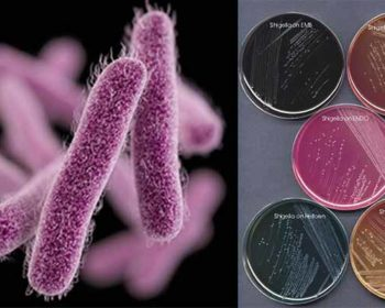 Laboratory Diagnosis, Treatment and Prevention of Shigella dysenteriae