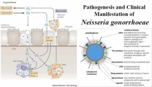 Pathogenesis and Clinical Manifestation of Neisseria gonorrhoeae