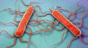 Laboratory diagnosis of Listeriosis caused by Listeria monocytogenes