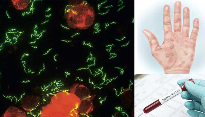 Laboratory diagnosis of Syphilis caused by Treponema pallidum