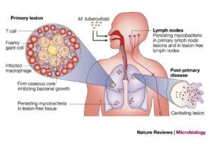 Pathogenesis and Clinical manifestation of Mycobacterium tuberculosis
