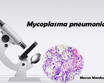 Laboratory diagnosis, Treatment and Prevention of Mycoplasma pneumoniae