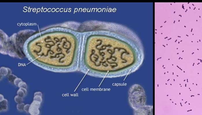 Laboratory diagnosis, Treatment and Prevention of Streptococcus pneumoniae
