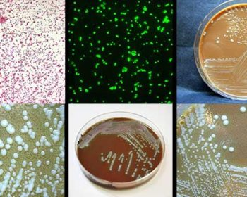 Laboratory diagnosis of Francisella tularensis