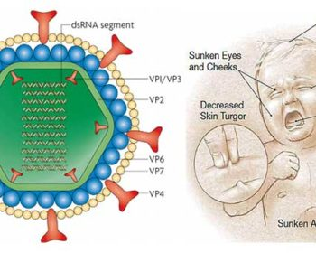 Rota Virus- Structure, Genome, Epidemiology, Replication, Pathogenesis, Clinical Manifestation, Lab Diagnosis, Treatment, Vaccination, Prevention and Control