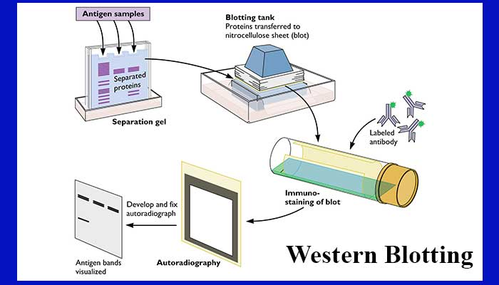Western blotting- Introduction, Principle and Applications