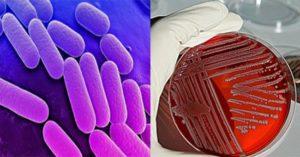 Biochemical Test of Klebsiella pneumoniae