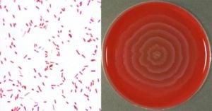 Biochemical Test of Proteus mirabilis