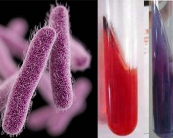 Biochemical Test of Shigella flexneri