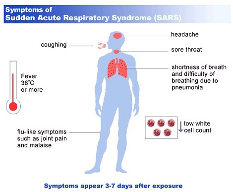 Clinical ManifestationsofSARS