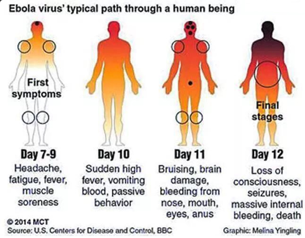 Clinical manifestations of Ebola Virus