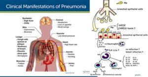 Pathogenesis and Clinical Manifestations of Mycoplasma pneumoniae