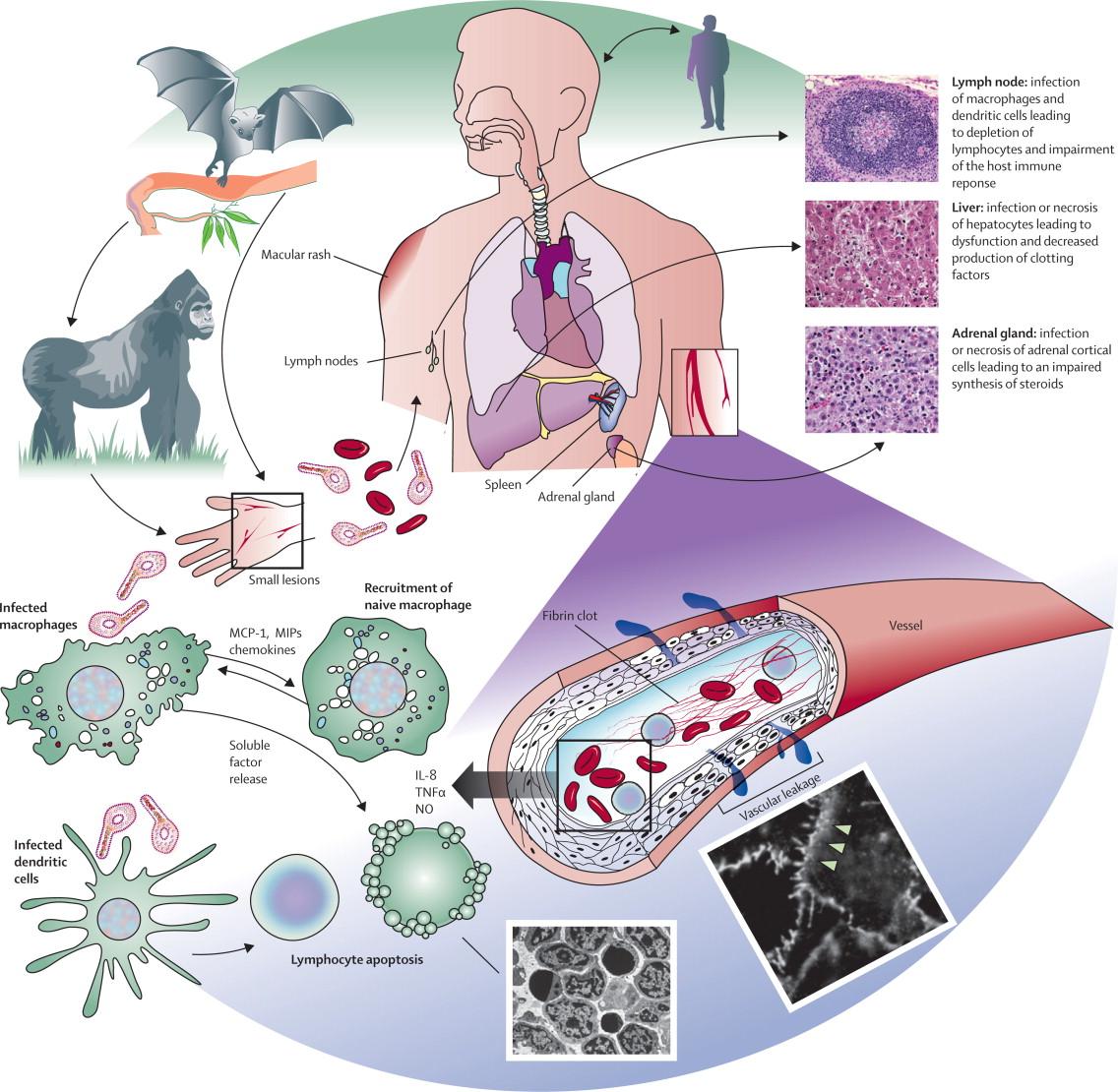 PathogenesisofEbola Virus
