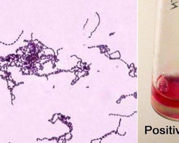 Biochemical Test of Streptococcus pyogenes