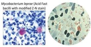 Habitat and Morphology of Mycobacterium leprae