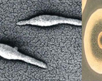 Habitat and Morphology of Mycoplasma pneumoniae