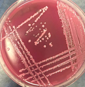 Klebsiella pneumoniae on MacConkey Agar